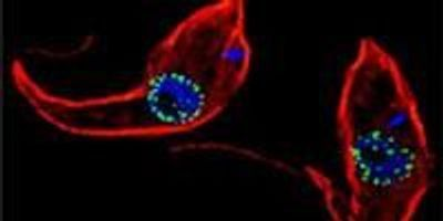 Parasites Reveal How Evolution Has Molded an Ancient Nuclear Structure