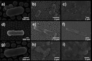 SEM images of E.coli