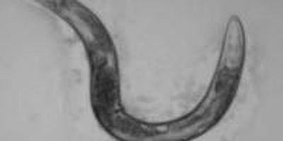 Worm Study May Resolve Discrepancies in Research on Aging