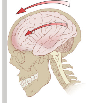 A diagram of the forces on the brain in concussion