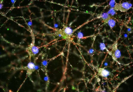 C4 at synapses of cultured human neurons