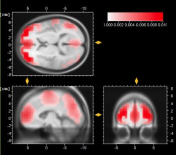 Prof. Jean Decety and his team will use functional magnetic resonance imaging to investigate how the brain responds when subjects hear specific martyrdom messages from extremist organizations