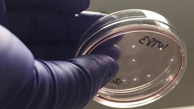 Brain Organoids in a Dish, UC San Diego Health Sciences