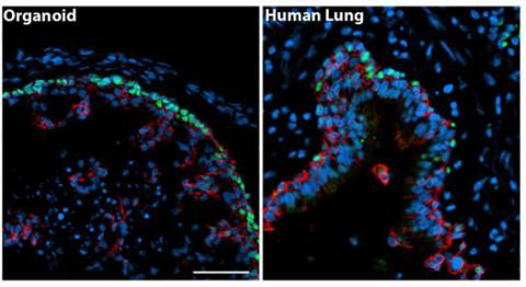 organoid versus lung