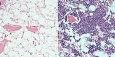 Drug Accelerates Blood System's Recovery after Chemotherapy, Radiation