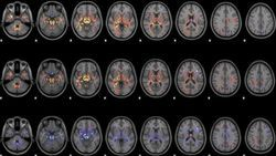 MRI Technique Shows Unique Signatures of Concussion in Rugby Players