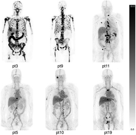 Zr-89-DFO-MSTP2109A Maximum-Intensity Projections of Patients with Bone Metastases