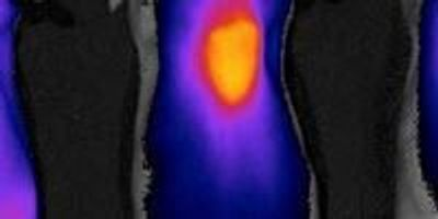 A Homing Beacon for Chemotherapy Drugs