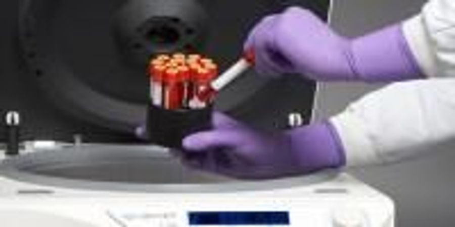 Centrifuges: Adding Safety and Versatility to High-Speed Separations.