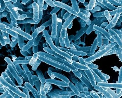 Advances in Tuberculosis Diagnostics