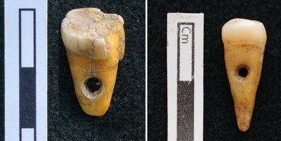 Rare Find: Human Teeth Used as Jewelry in Turkey 8,500 Years Ago