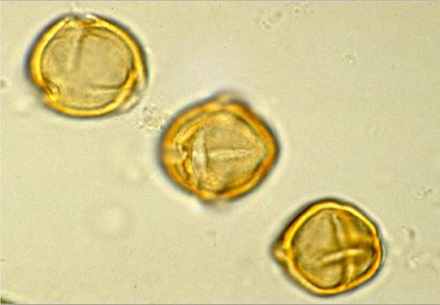 Pollen Under the Microscope (Three Grains)