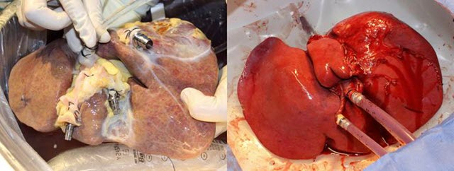 non-perfused liver and treated liver