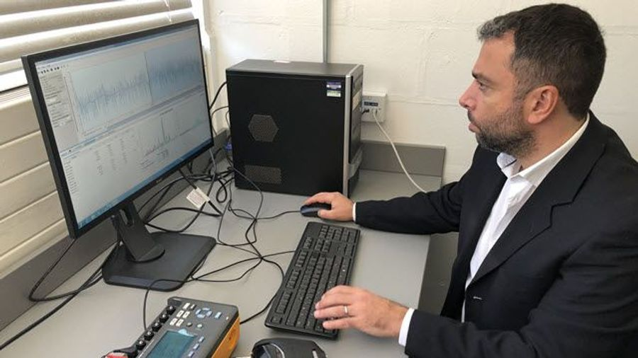 Artificial Intelligence Can Detect Low-Glucose Levels via ECG Without Fingerprick Test