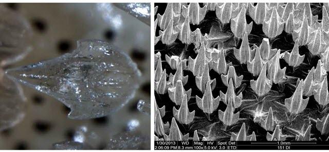Denticles of Puffadder Shysharks