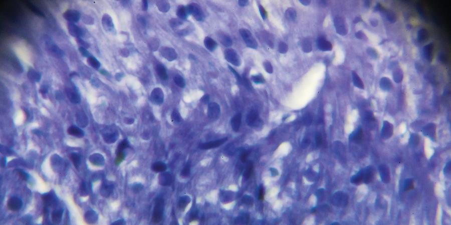 Fluorescent Protein Reversible in Common Microscopy Technique