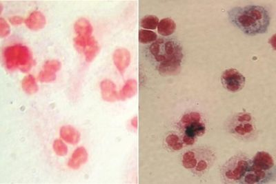 6 Patients with Rare Blood Disease Doing Well after Gene Therapy Clinical Trial