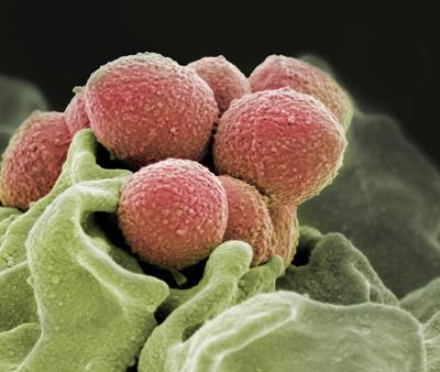 Discovery Reveals Antibiotic-Resistant Strep Throat May Be Too Close for Comfort