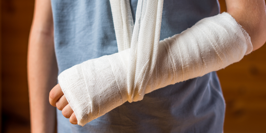A Promising New Strategy to Help Broken Bones Heal Faster