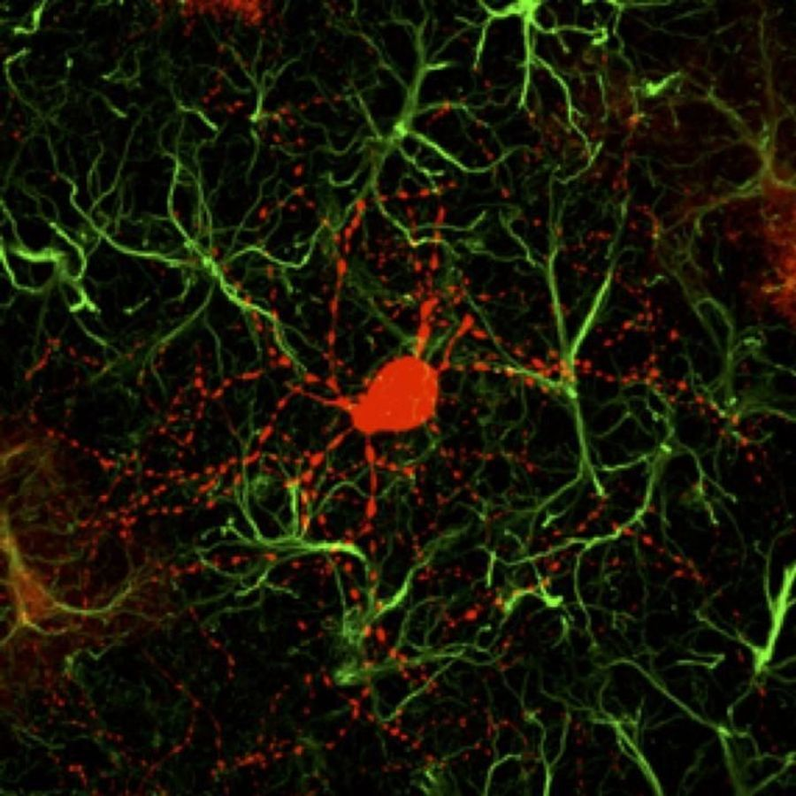 Gene Therapy Generates New Neurons to Treat Huntington's Disease