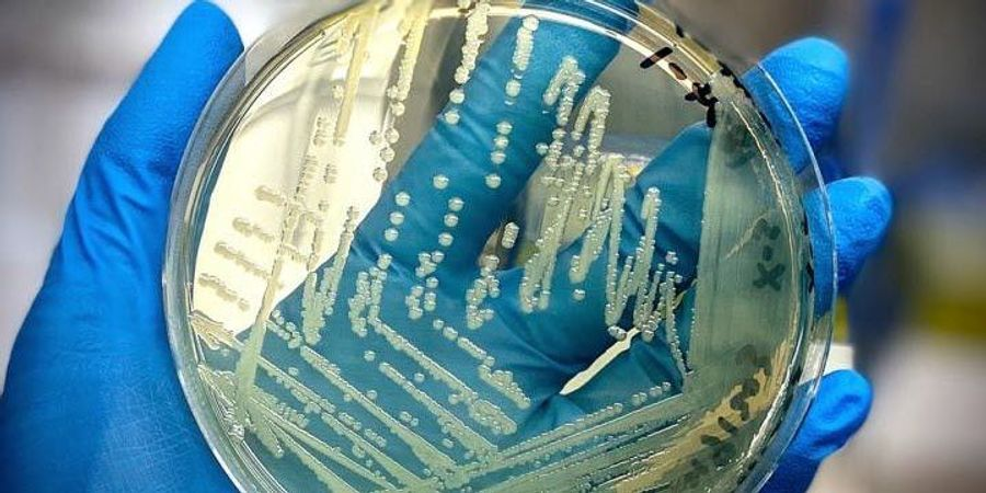 Food Scientists Slice Time off Salmonella Identification Process