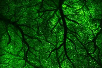High-Speed Microscope Captures Fleeting Brain Signals