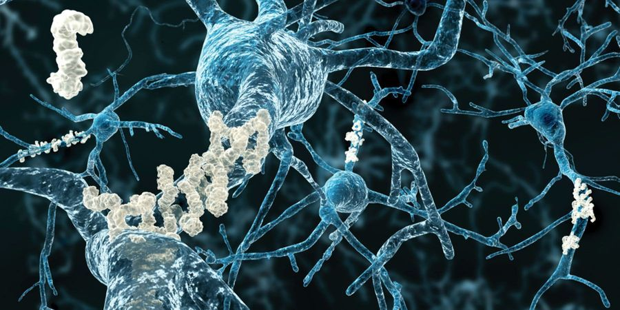 Scientists Discover Gene That Increases Risk of Alzheimer's