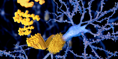 Alzheimer's Trial Screening Data Links High Amyloid Levels with Early Stage Disease