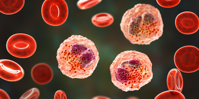 Autoimmunity May Be Rising in the United States