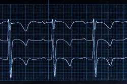 Cardiac Biomarkers for Diagnosis, Prognosis, and Therapy Guidance