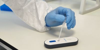 An Instrument-Free Molecular Diagnostic Test for COVID-19
