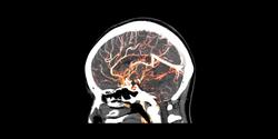 APOE4 Triggers Early Breakdowns in the Blood-Brain Barrier