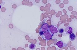 A Step Toward Standardized Residual Disease Testing in Acute Myeloid Leukemia