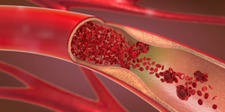 COVID-19 Patients at Risk for Thrombotic Events, Tests Show
