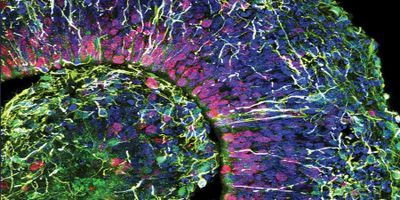 Brain in a Dish Creates New Possibilities for Neuroscience Research