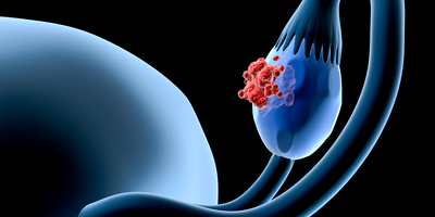 New Test Could Mean Better Ovarian Cancer Treatment