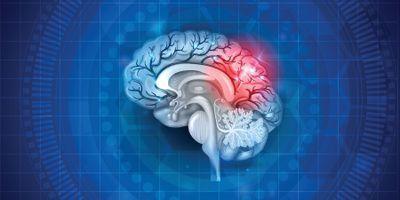 Detecting and Predicting Severity of Traumatic Brain Injury