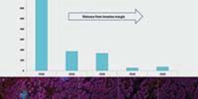 How Multiplex Immunohistochemistry Works