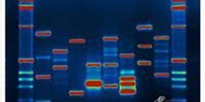 DNA Tool Allows You to Trace Your Ancient Ancestry