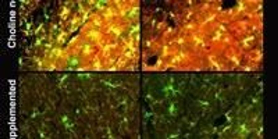 Essential Nutrient May Help Fight Alzheimer's Across Generations