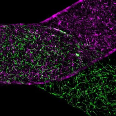 Blood-Brain Barrier Defect Recreated Outside the Body
