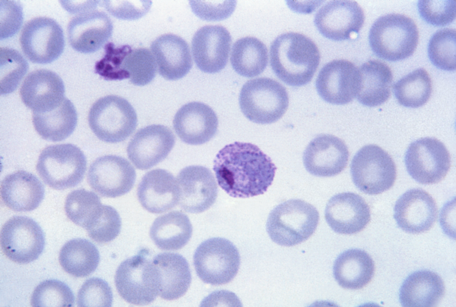 A Quick DNA Test for Malaria Drug Resistance
