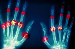 New Clues on Tissue Damage Identified in Rheumatoid Arthritis and Lupus
