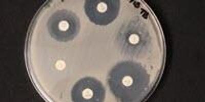 Stop Sterilizing Your Dust