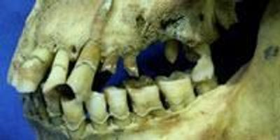 Irish Famine Victims' Heavy Smoking Led to Dental Decay
