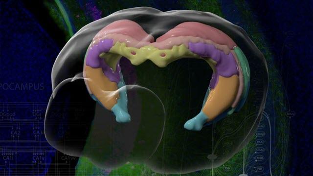 brain-mapping