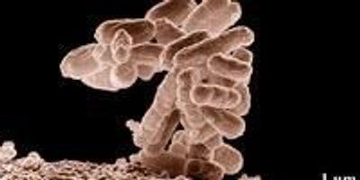 Viruses Discern, Destroy E. Coli in Drinking Water