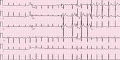 Big-Data Study Pinpoints More Than 150 Genes Associated with Atrial Fibrillation