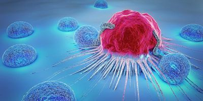 New Diagnostic Method Finds Aggressive Tumors