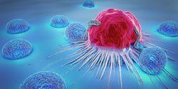 New Diagnostic Method Finds Aggressive Tumors